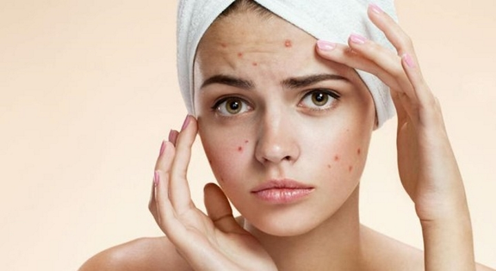 acne - فروشگاه اینترنتی می شاپ