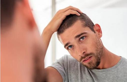 20 راه جلوگیری از ریزش مو در مردان